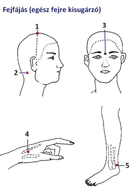 akupunktúrás pont magas vérnyomás esetén hogyan kezeli a keleti orvoslás a magas vérnyomást